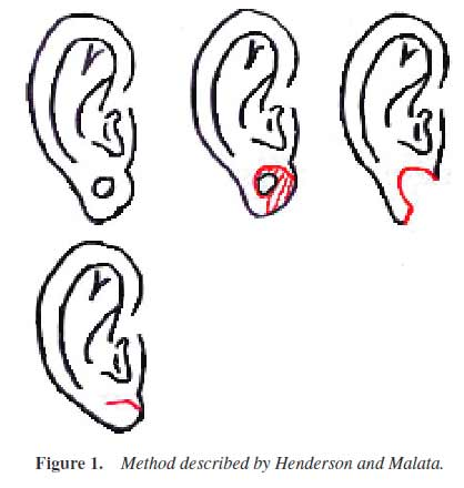 Ear-Gauge-Remedy